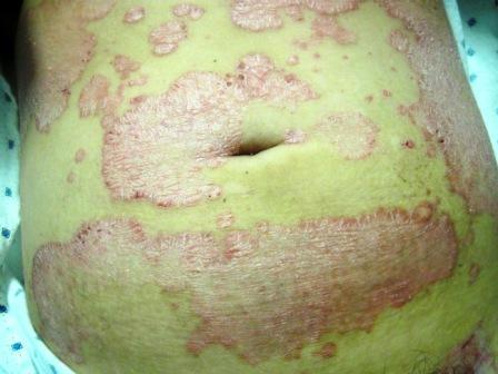 psoriasis-abdomen