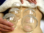 glass_cupping
