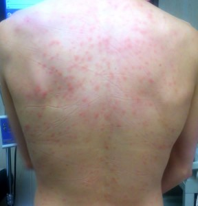 skin hive on the back urticaria