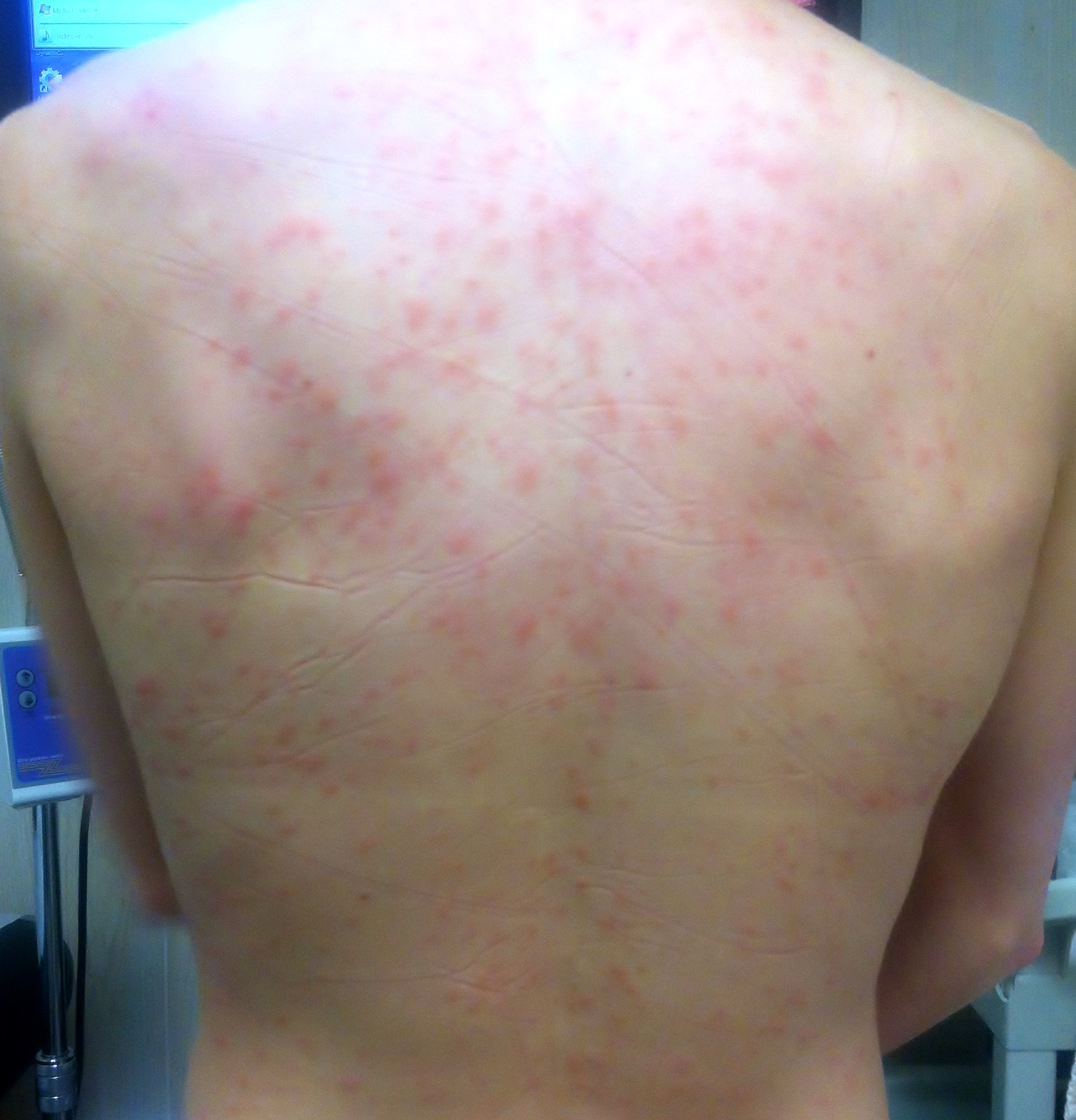 How Acupuncture Treats Skin Hives Tao Of Medicine